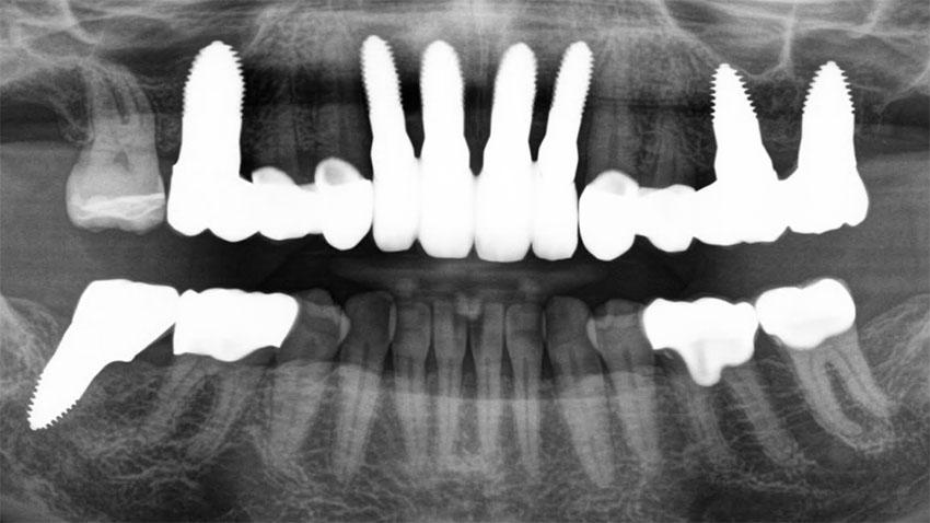 Gebiss von Catherine Steward nach der Zahnbehandlung