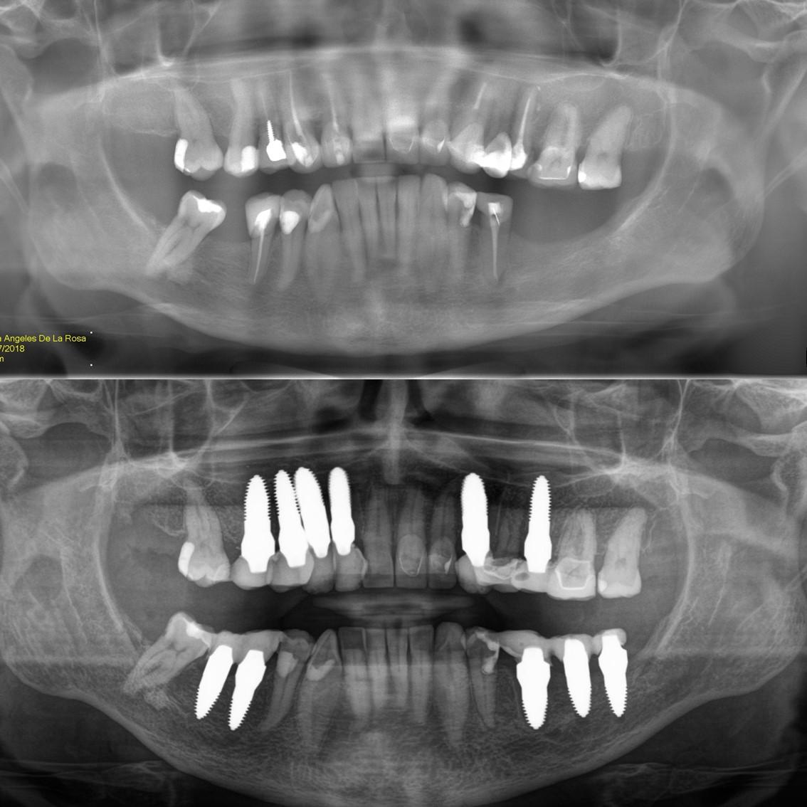 Angie de la Rosa teeth