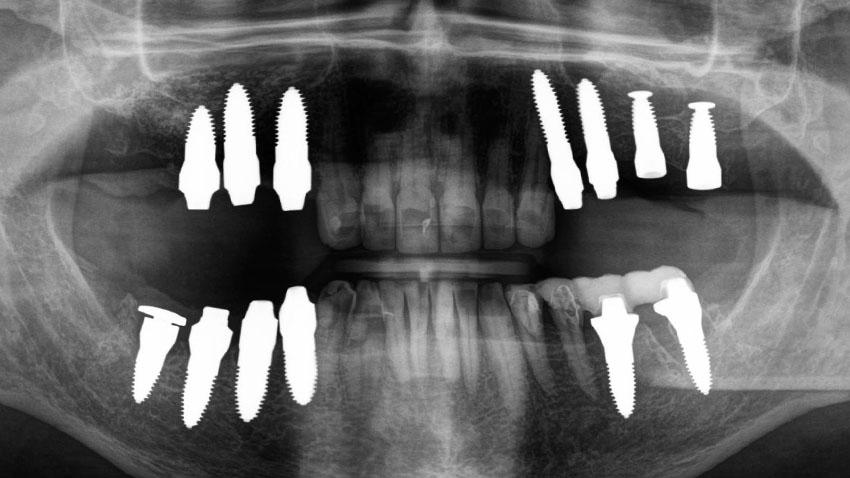 Gebiss nach der Behandlung mit Keramik-Implantaten